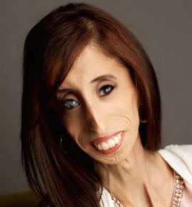 Lizzie Velasquez Wiki, Married, Husband or Boyfriend, Dating